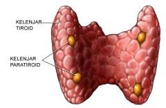 Obat Tradisional Kelenjar Tiroid